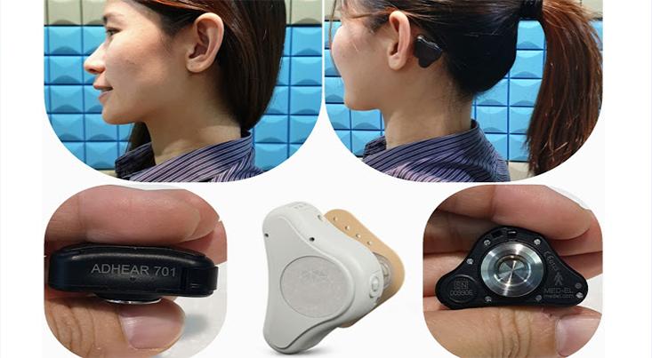 دستگاهی برای کمک به مشکلات شنوایی