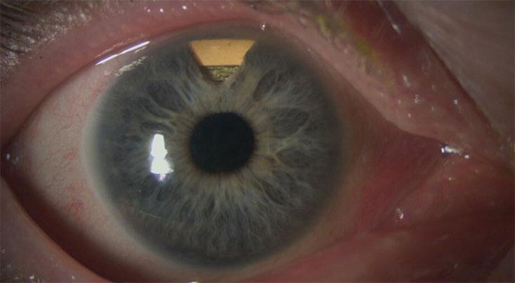 کنترل و تنظیم مستمر فشار چشم در بیماران مبتلا به گلوکوم