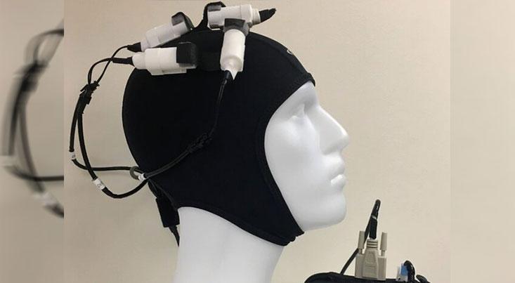 رهایی از عوارض سکته مغزی با تحریک مغناطیسی مغز