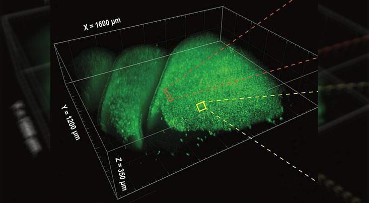 ابزاری برای بررسی سهبعدی فعالیت عصبی مغز