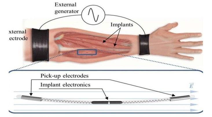 روش جدیدی برای انتقال بیسیم نیرو به بدن افراد مبتلا به فلج اندام