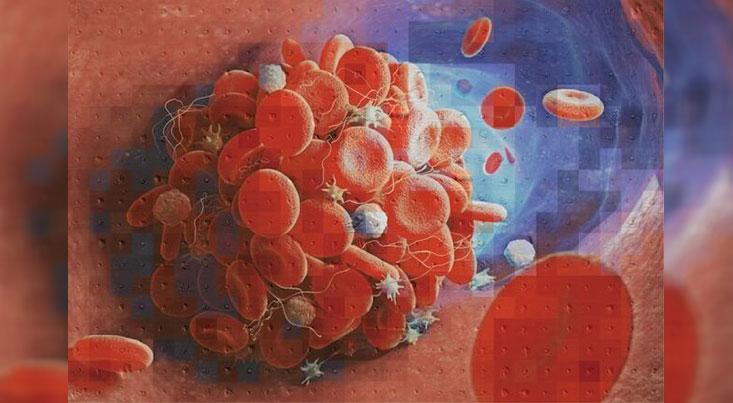 ابزار جدیدی که لختههای خون را شناسایی میکند