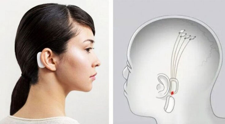 تراشهای برای پخش موسیقی در مغز