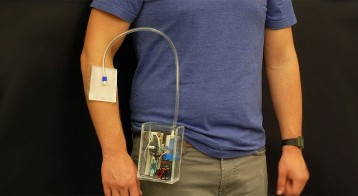 محقق ایرانی دستگاه درمان زخم با ازن ابداع کرد