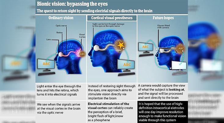 بازیابی بینایی با پیوند الکترود در مغز