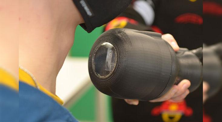 دوربین دستی اشعه گاما سرطان را در زیر پوست شکار میکند